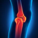 odszkodowanie za złamanie nogi